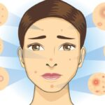 Ruddy Complexion treatment